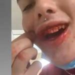 Un adolescente de Fortuna (Murcia), ahora refugiado en casa de su abuela, denuncia el acoso homófobo que sufre a manos de otros miembros de su familia