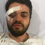 «Te vamos a matar por puto»: brutal agresión homófoba a un joven en Argentina
