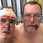 Brutal agresión a un matrimonio gay en Gante (Bélgica) por parte de unos vecinos abiertamente homófobos