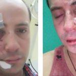 Detenida la atacante homófoba que le cortó el rostro a un animador de eventos en un pub de Chile