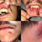 Un joven denuncia haber sufrido una agresión con tintes homófobos a manos de los porteros de una discoteca en San Fernando, mientras la dirección del local lo niega