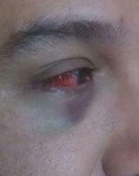 hematoma agredido homofobia Chile