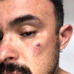 Un chico español sufre una agresión homófoba en Brighton (Inglaterra)