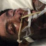Espantosa agresión homófoba: arroja agua hirviendo sobre una pareja de chicos mientras dormían, causándoles graves quemaduras