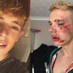 Un joven de 22 años, brutalmente golpeado en la cabeza por ser gay en Preston (Inglaterra)